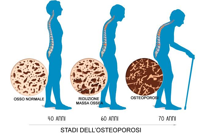 Osteopatia e anziani a Firenze
